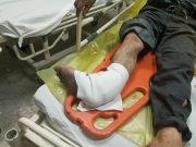مواد محترقه باعث قطع مچ پای فرد ساوجی شد